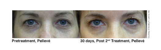 1-Pelleve-Before-After-Lemke-eyes