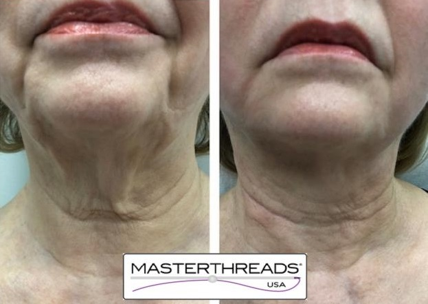 BA-lower-face-and-neck-images