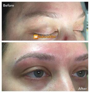 forehead Microblading