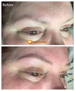 Microblading on forehead
