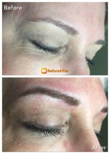 Microblading on face