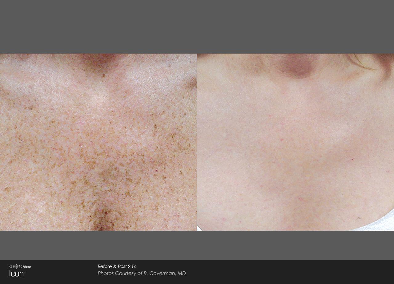 Icon-MaxY-R-Coverman-pigment-chest-post2Tx