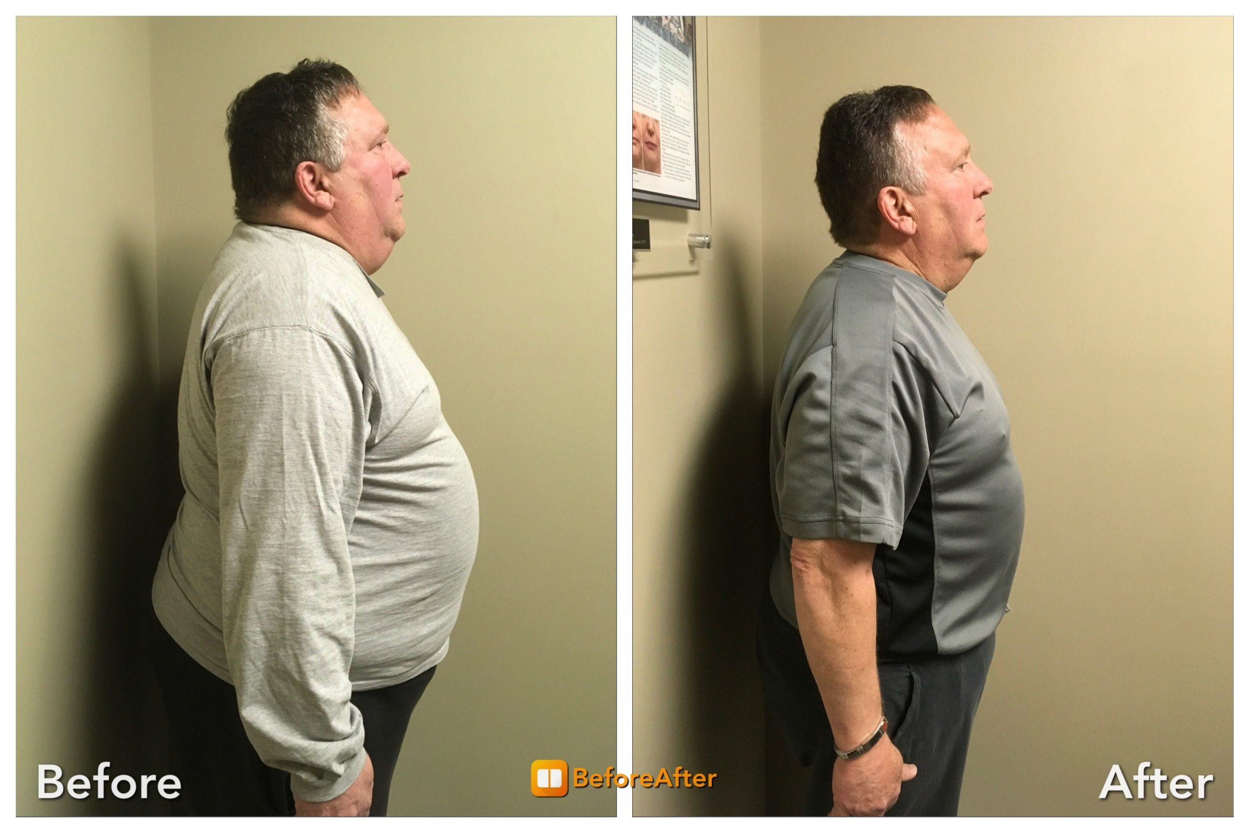 Man_side_Medical-Weight-Loss