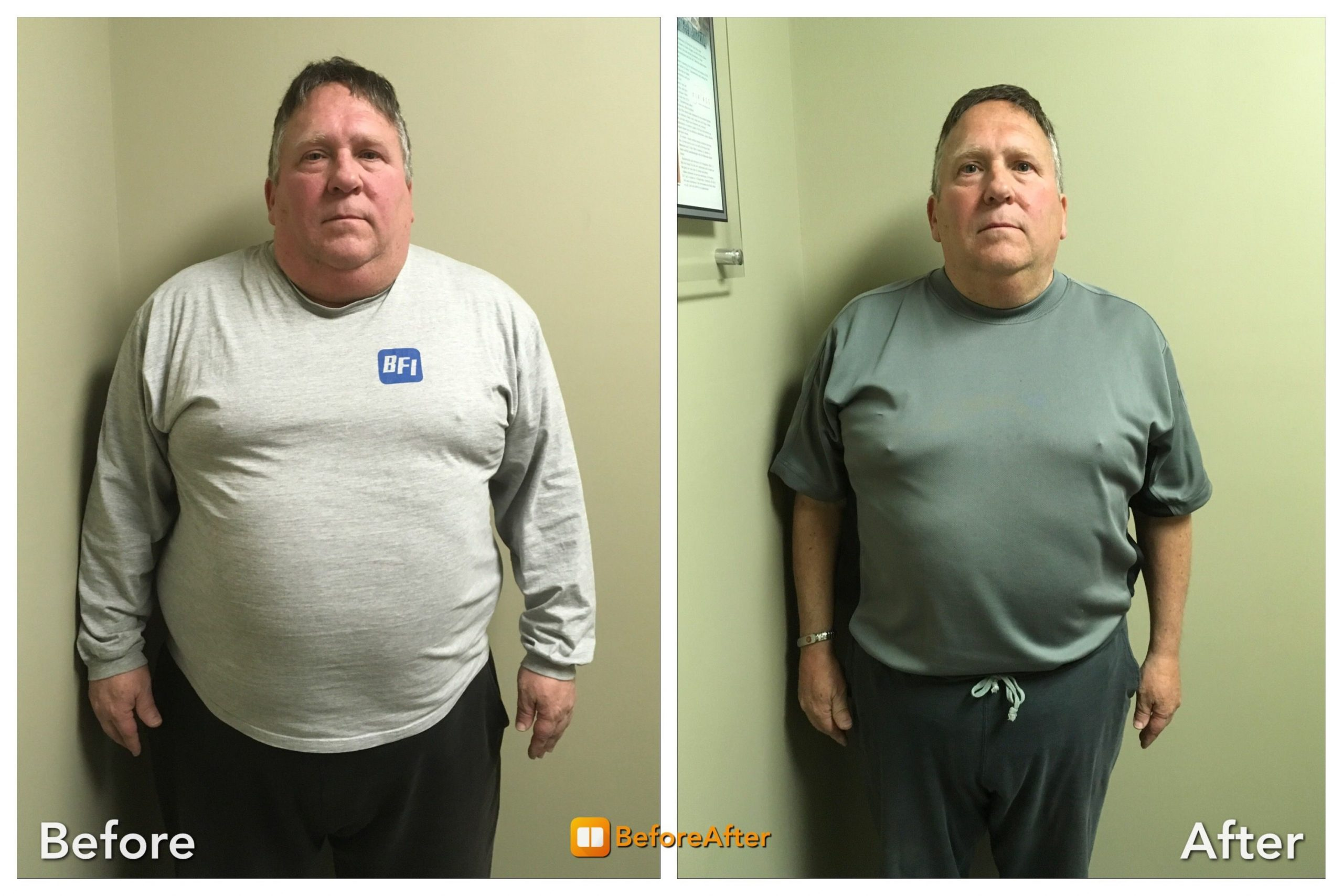Medical-Weight-Loss_patient