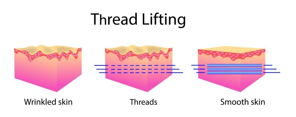 PDO-thread-lifting
