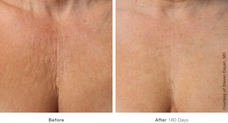 before_after_ultherapy_results_chest