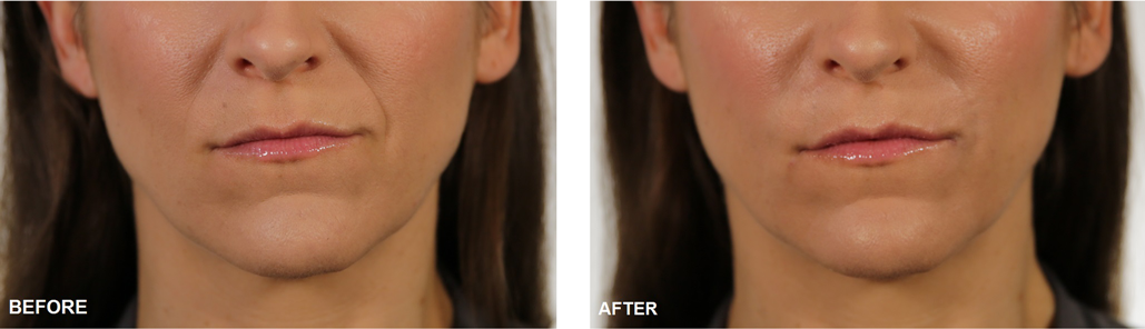 fillers-before-after-image