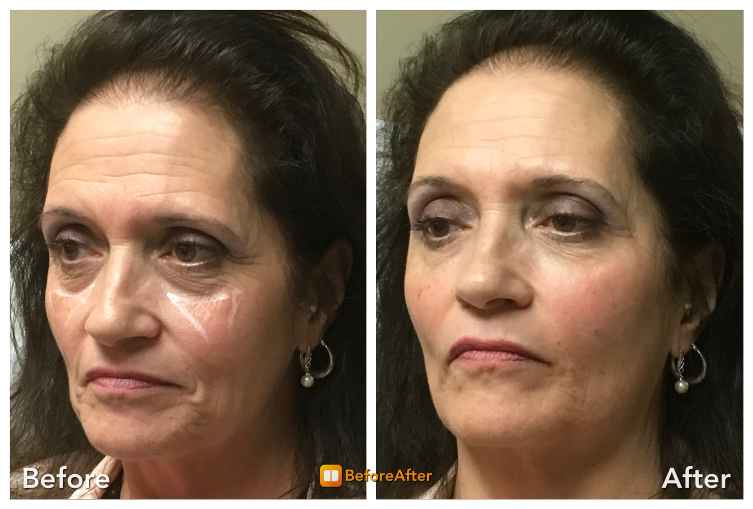 lef-face-weight-loss